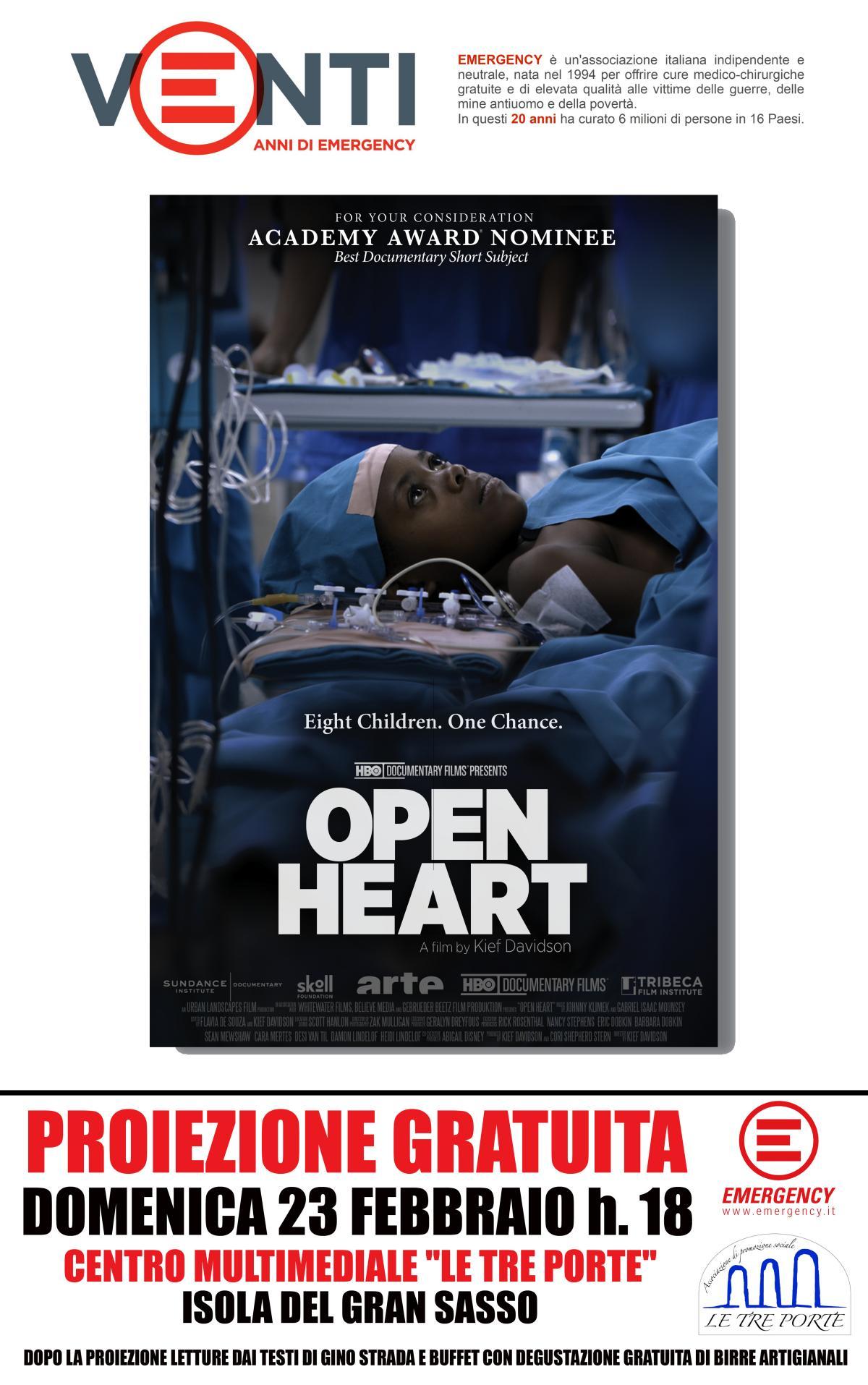 Open Heart, la storia di 8 bambini e un'unica possibilità di sopravvivenza